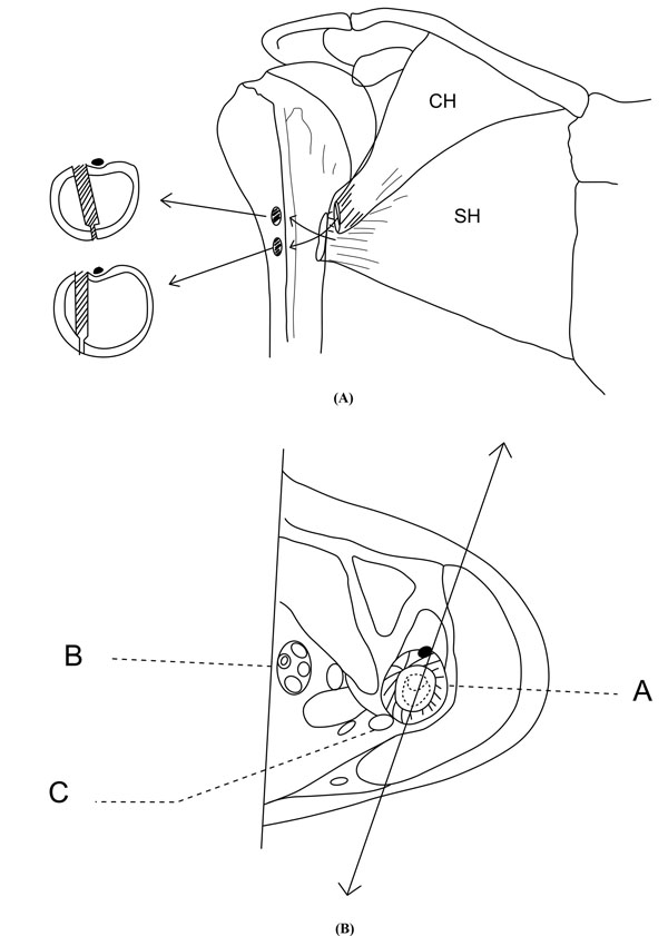 illustrations showing ideal position and trajectory of drill bit holes for  reinsertion of sternal head (sh) and clavicular head (ch) of pectoralis  major