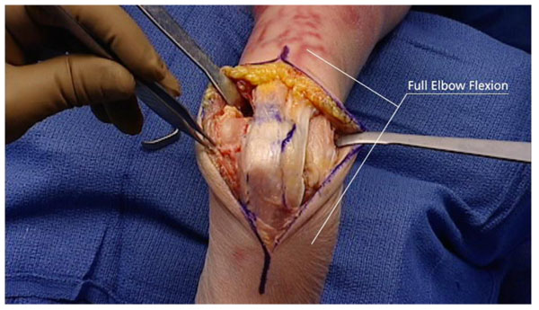 Challenges and Solutions in Management of Distal Humerus Fractures