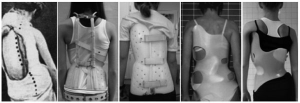 A Modern Historical Perspective of Schroth Scoliosis