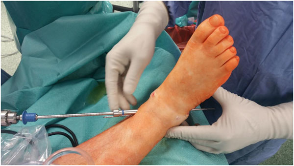 Results of Arthroscopic Ankle Arthrodesis with Fixation