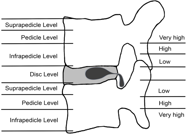 Percutaneous Endoscopic Spine Surgery for Extruded Lumbar Disc