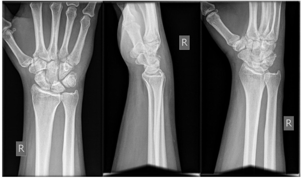 Intra Articular Fracture Of The Distal Part Of The Triquetrum Within