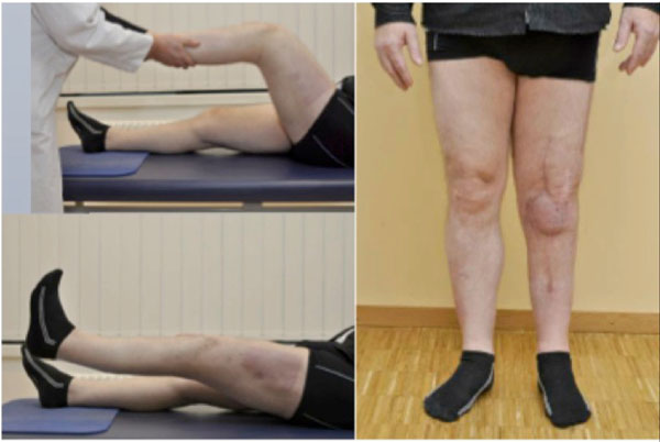 One Stage Conversion of an Infected Fused Knee to Total Knee